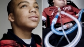 Editorial Portrait Photography: United Cerebral Palsy, Oakland
